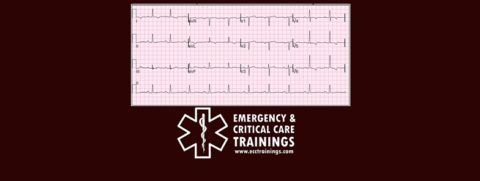 ECG: Arritmias Cardiacas ecctrainings