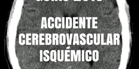 guías 2018 de accidente cerebrovascular isquémico