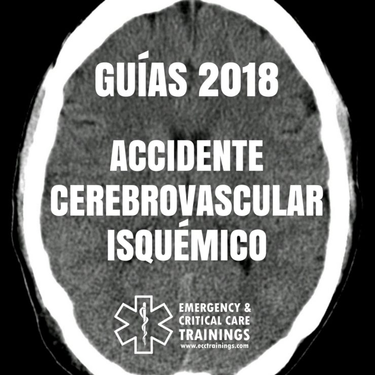 guías 2018 de accidente cerebrovascular isquémico